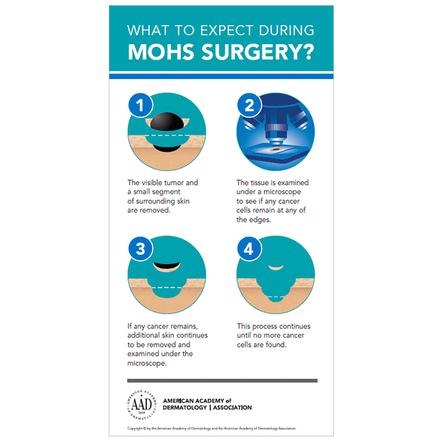 What to Expect During Mohs Surgery [Infographic]